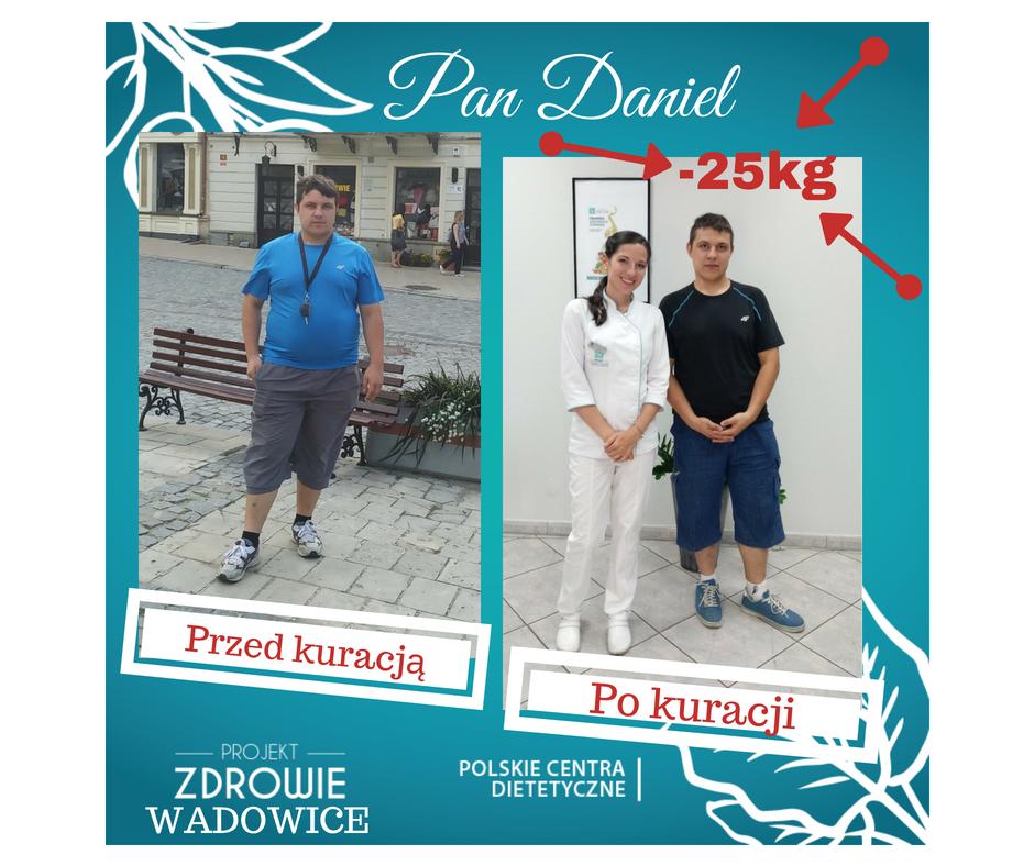 DARMOWA KONSULTACJA DIETETYCZNA-DNI OTWARTE w Projekt Zdrowie do 31 SIERPNIA!!!